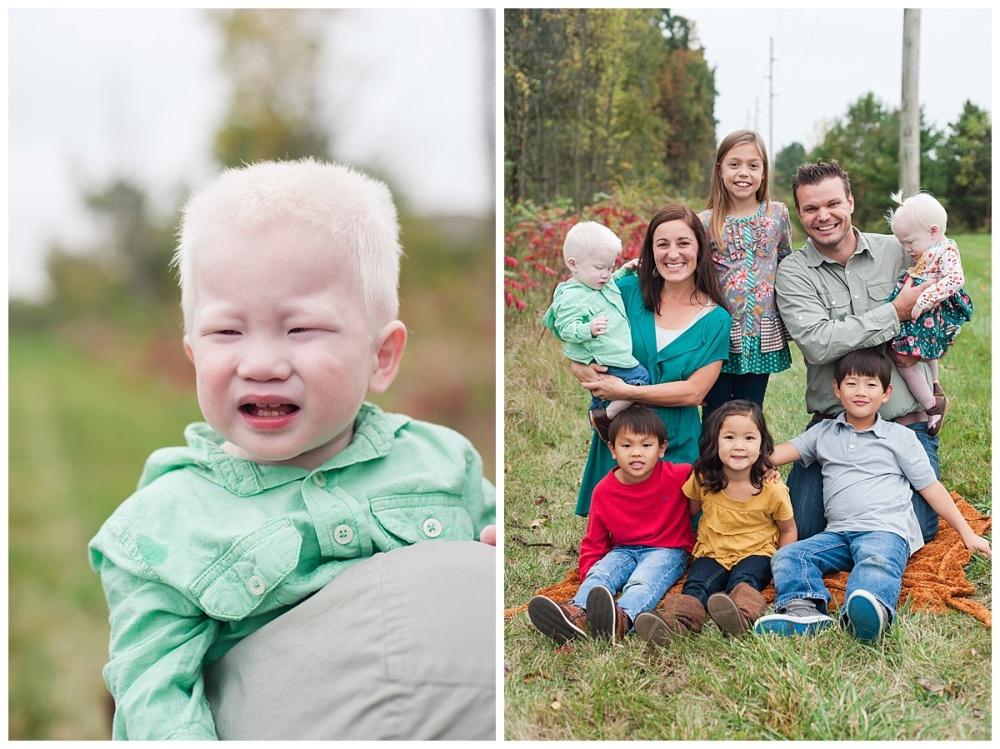 china adoption albino_0169