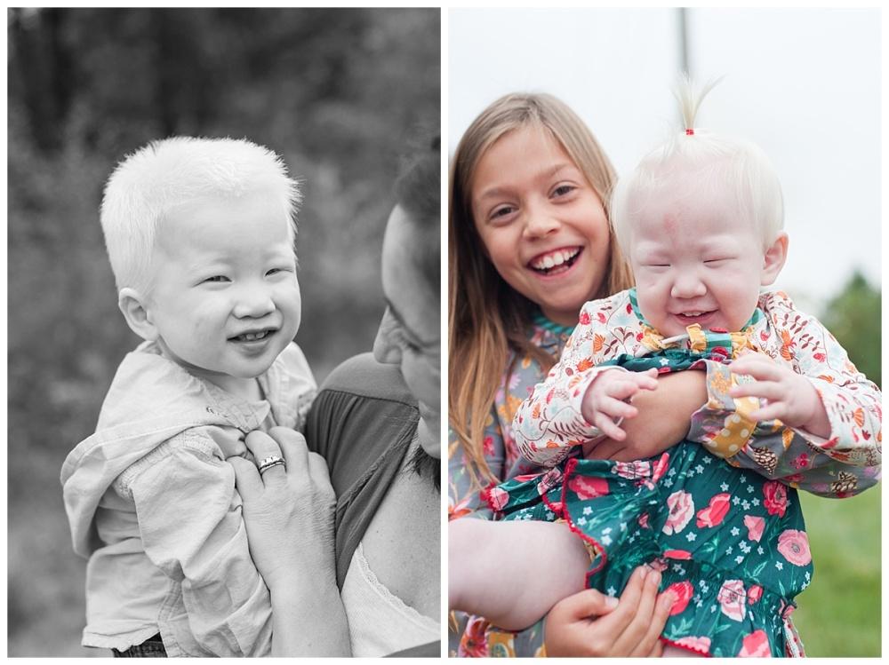 china adoption albino_0172