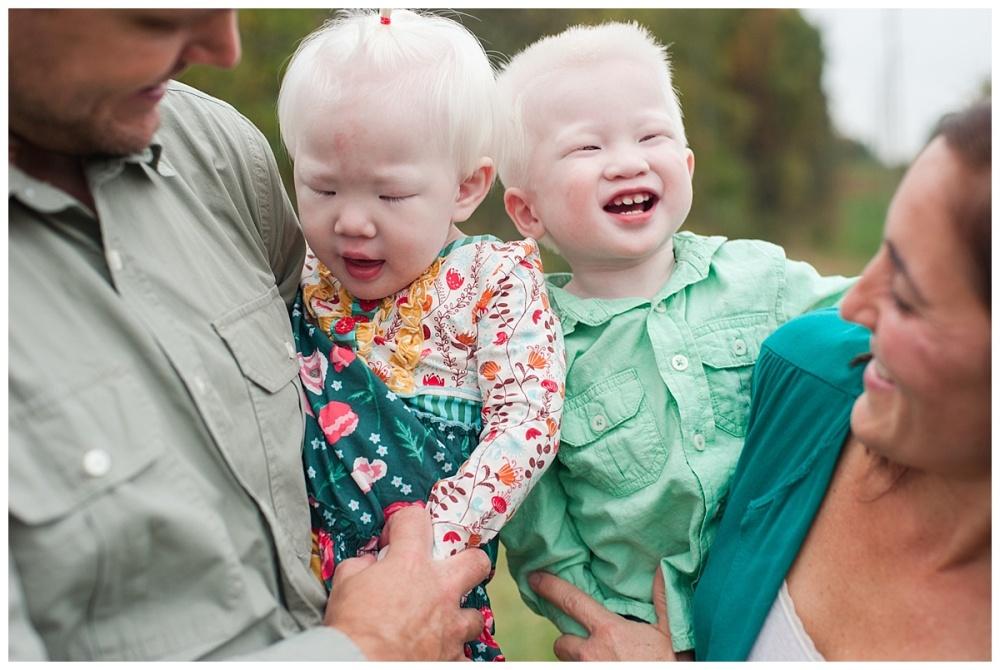 china adoption albino_0173